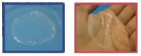 Chitosan-based wound dressing for diabetic foot ulcer treatment and burn wounds