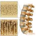 Biopolymer-containing calcium phosphate foam for bone regeneration